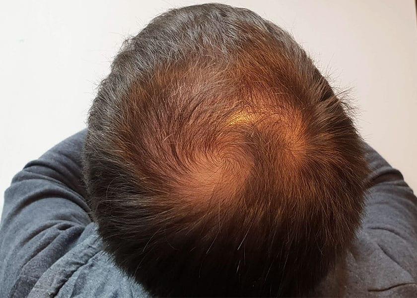 Auf dem Hinterkopf bildete sich zunehmends eine sichtbare Tonsur durch erblich bedingten Haarausfall.