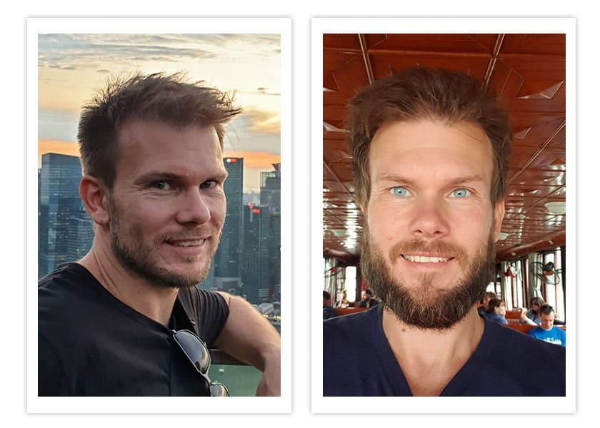 Bildvergleich Bart