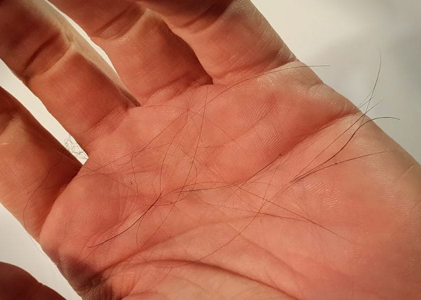Shedding-Effekt bei Minoxidil-Behandlung