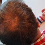 Erfolgreich Haarausfall stoppen - Report 2 - Hinterkopf rechts